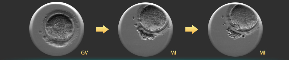 In vitro maturation of oocytes